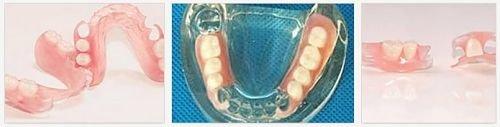 Частичный зубной съемный протез